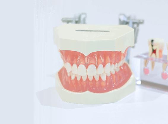 歯の模型 クイック矯正のイメージ